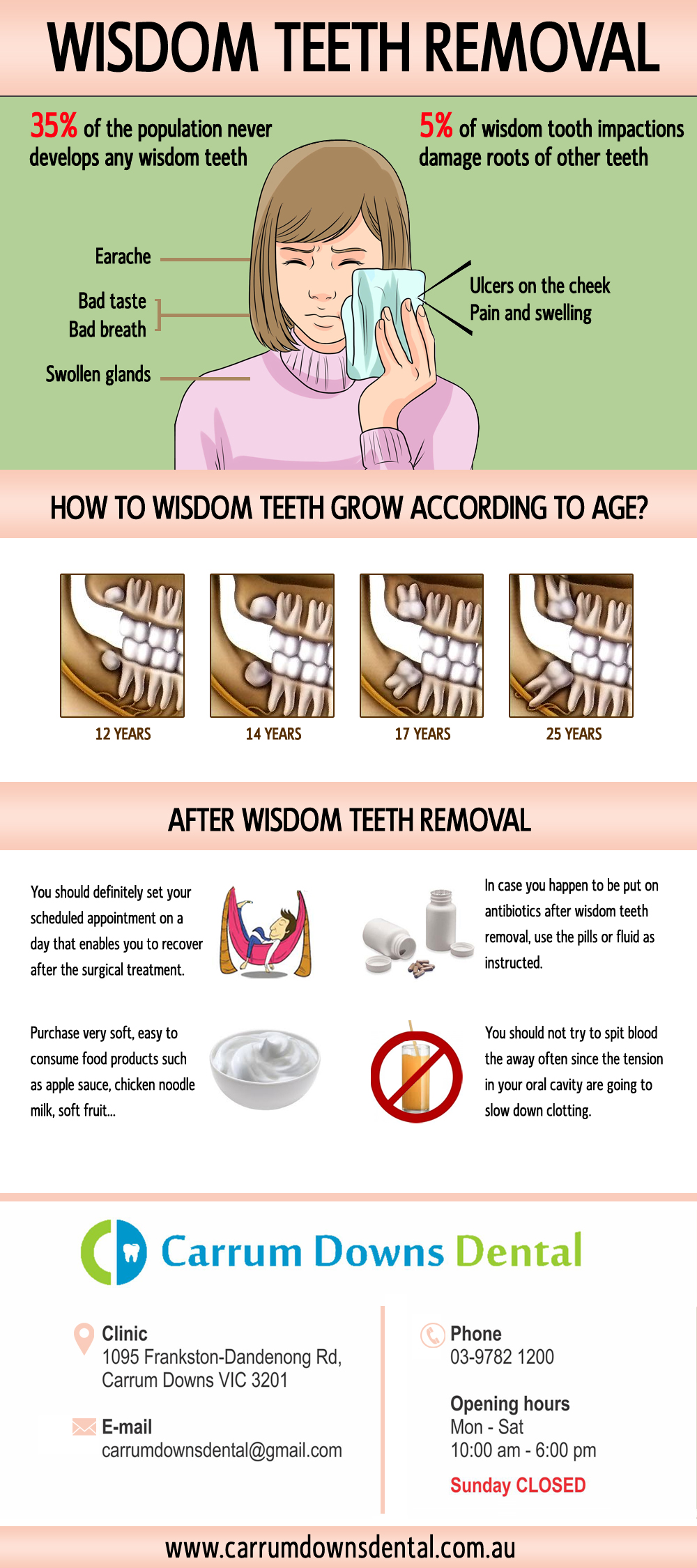 All You Need To Know About Wisdom Teeth Removal | Infographics
